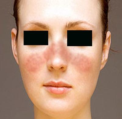 Lupusul eritematos sistemic - simptome, diagnostic, tratament